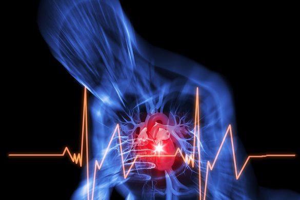 بیماری عروق کرونر چیست؟