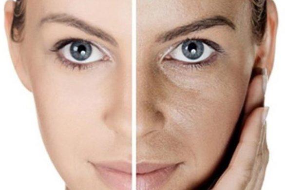 روش های درمان دورنگی پوست
