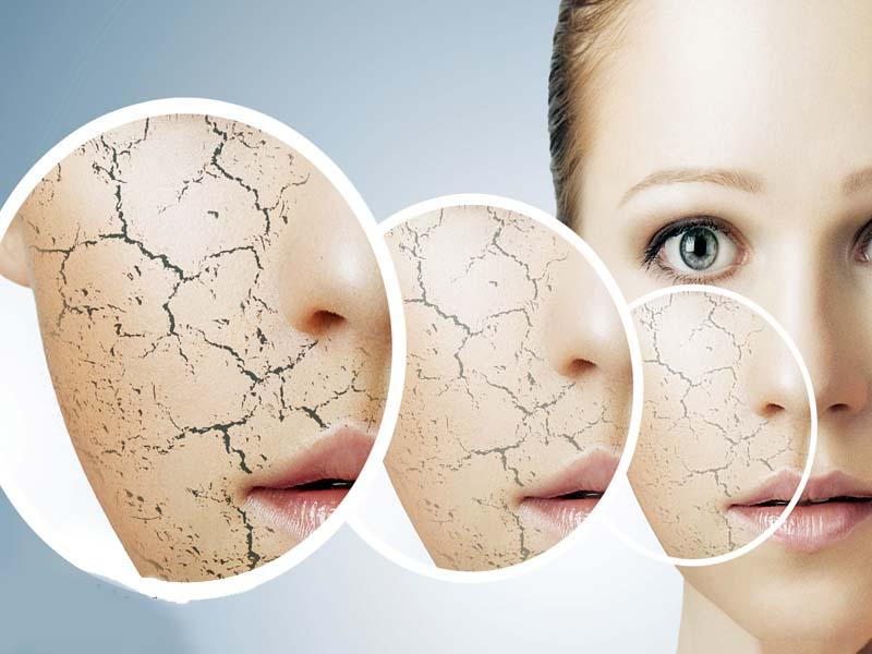 درمان های خانگی برای رفع ترک های پوستی