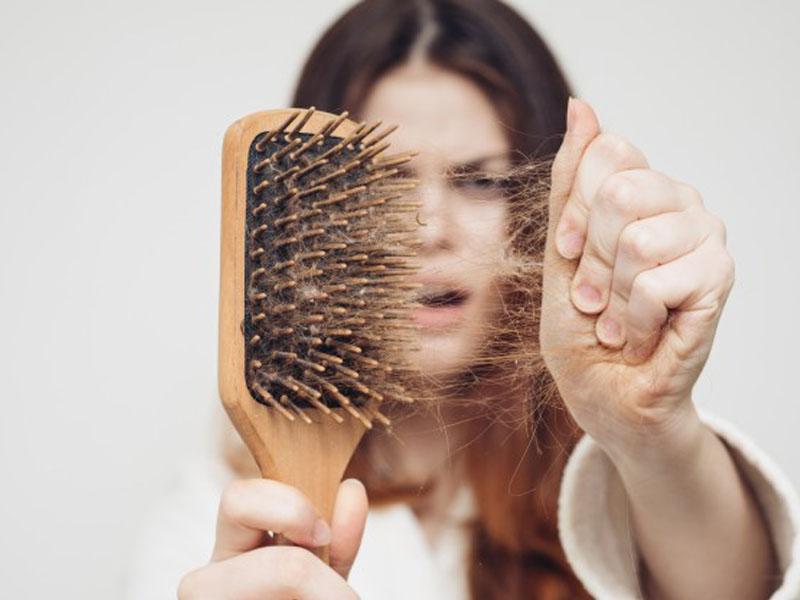 عوامل ریزش موی خانم ها