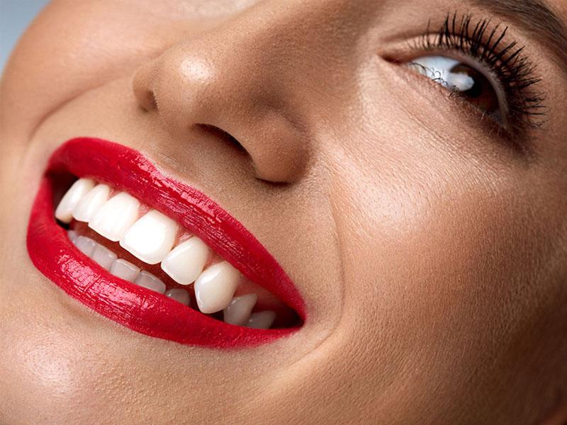 بلیچینگ دندان (سفید کردن دندان) چیست؟